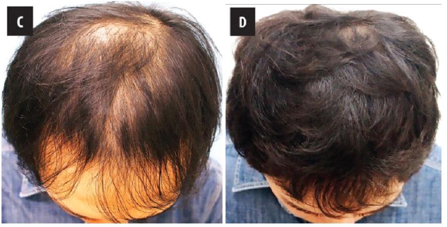 治療前後の髪の状態